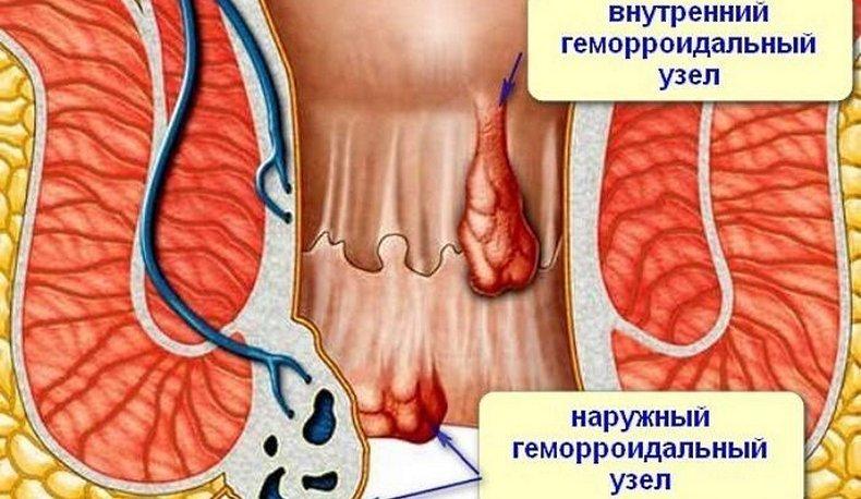 Геморрой виды, врач проктолог что лечит