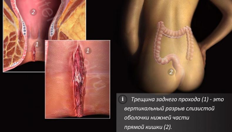 Проктолог 3