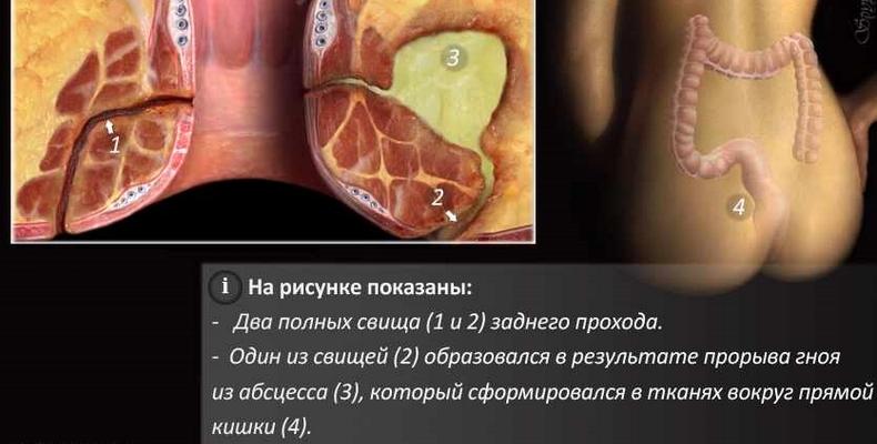 Врач проктолог что лечит, свищ прямой кишки