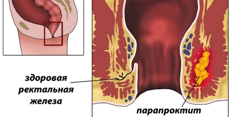 Врач проктолог что лечит, парапроктит