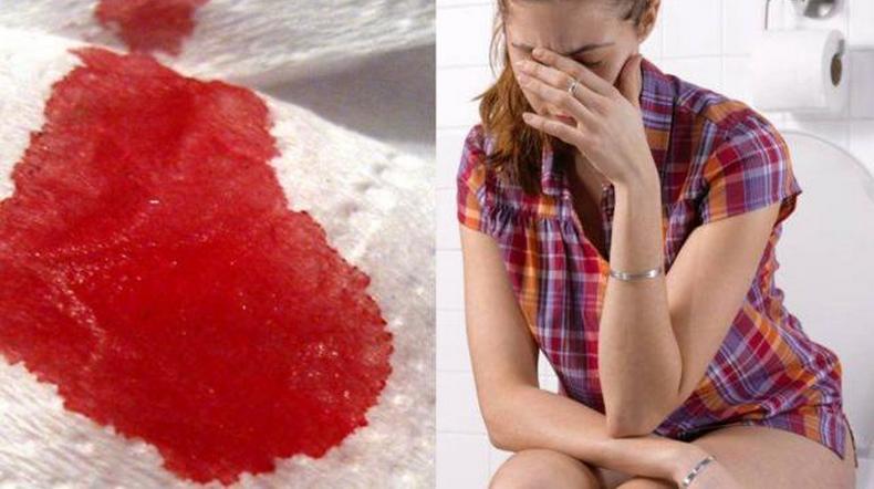 Кровянистые выделения, как после акта дефекации