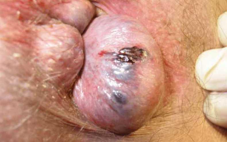 От чего появляется геморрой у мужчин фото thumbnail