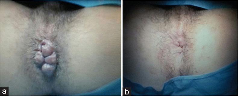 Фото геморроя до и после операции